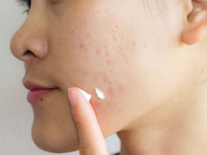 What are the best creams to remove acne scars?