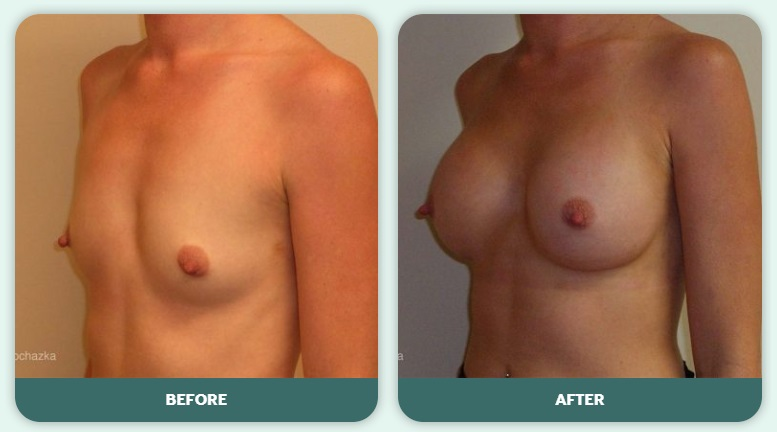 What You Should Know Before Breast Augmentation